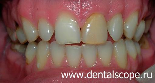 Перекисью карбамида отбеливание зубов отзывы